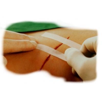 Залепващи се лейкопластни ленти